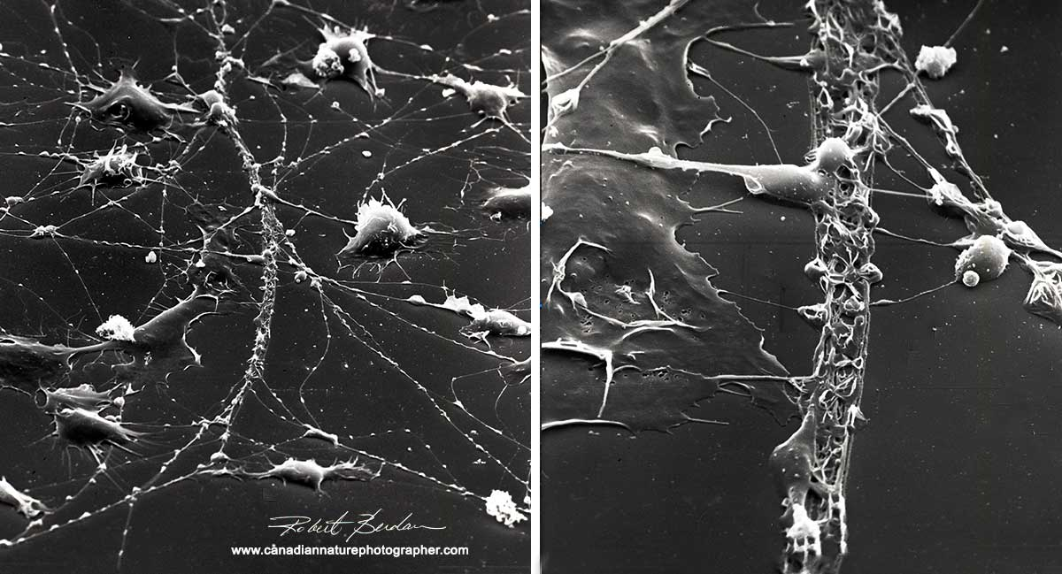 Scanning electron microscopy showing hemocyte trails in culture by Robert Berdan ©