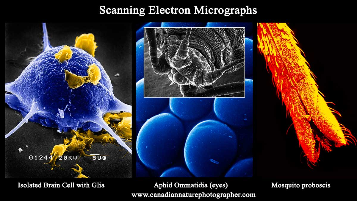 Scanning electron micrographs by Robert Berdan ©