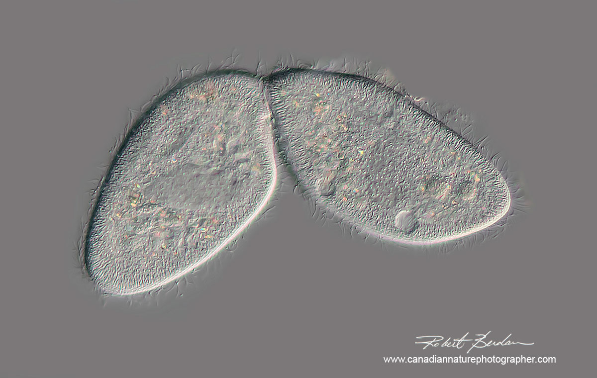 Two ciliates from pond water shown in the process of cell division. 400X DIC microscopy by Robert Berdan ©